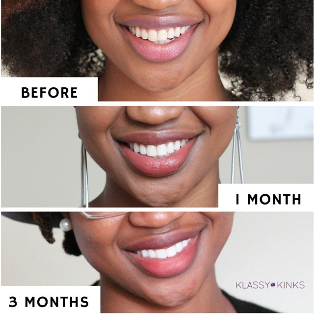 3 Month Results With Colgate Optic White Toothbrush Whitening