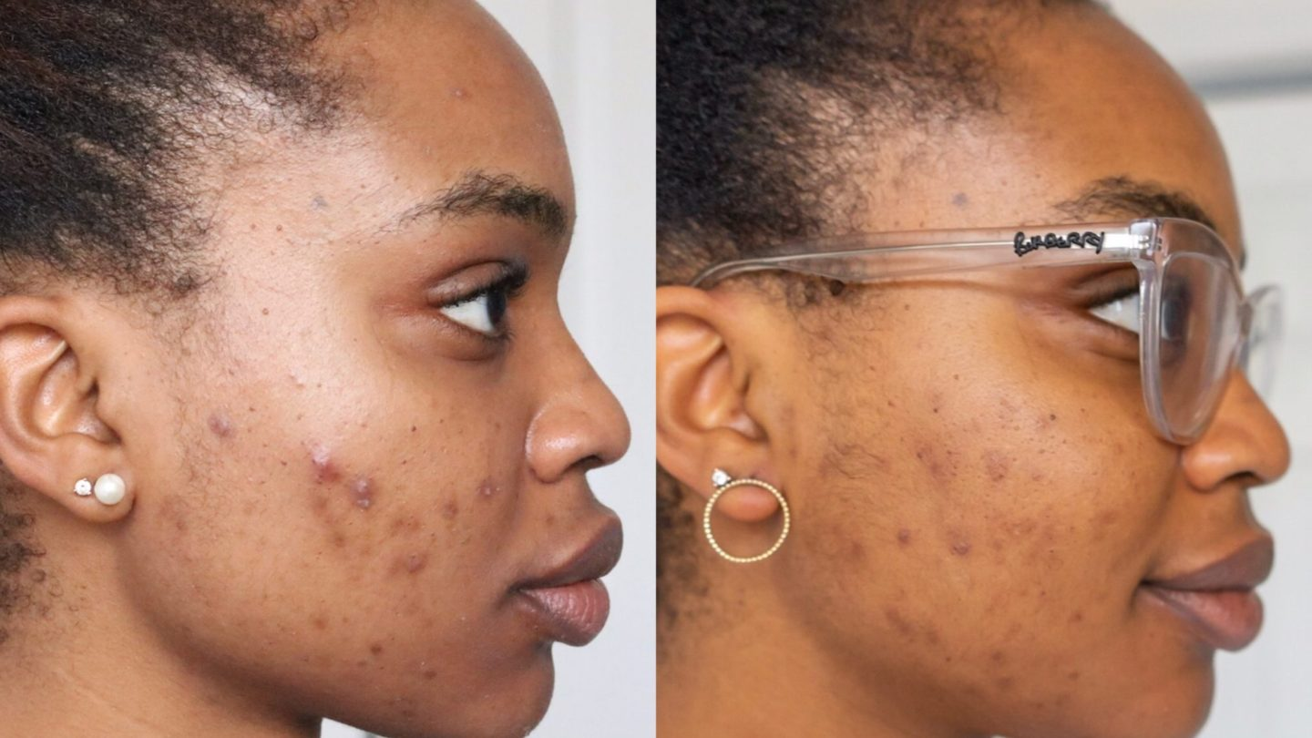 The Products That Cleared Up My Cystic Acne Ijeoma Kola